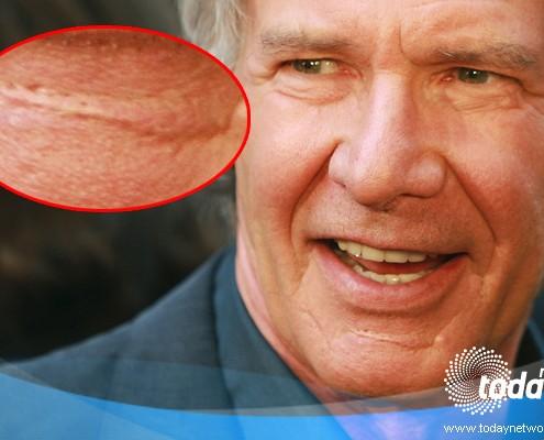 Harrison Ford ha una cicatrice sul mento