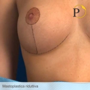 mastoplastica riduttiva cicatrici